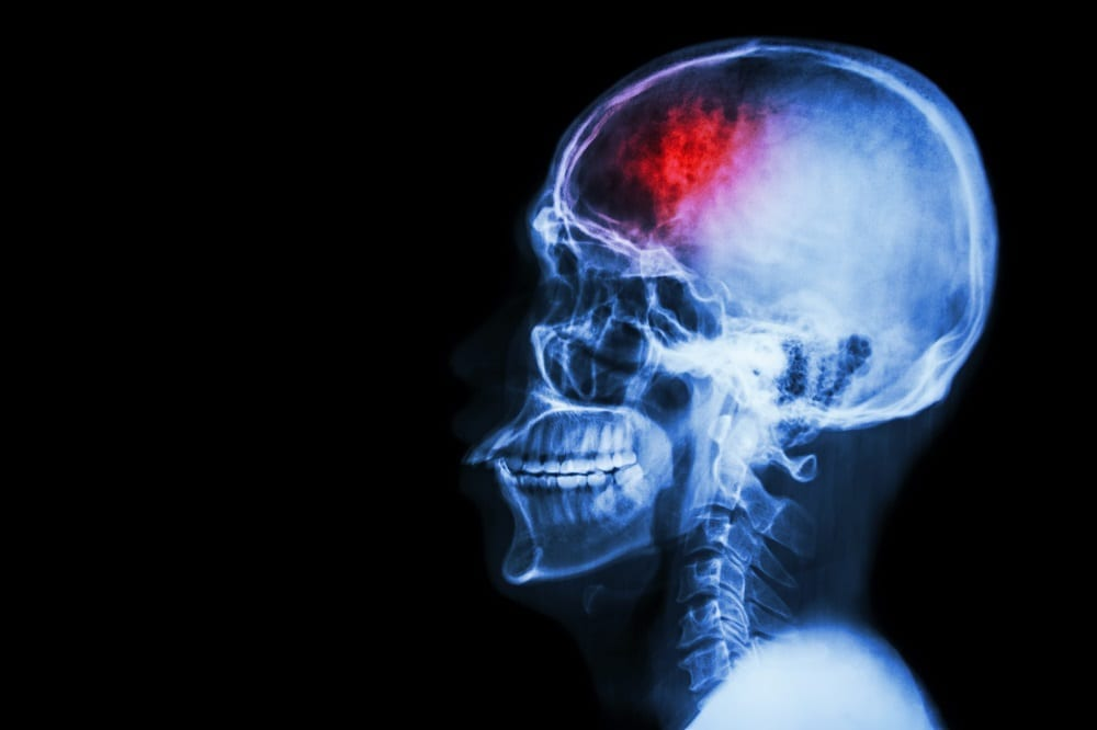 How do you recognize an intracranial hematoma?